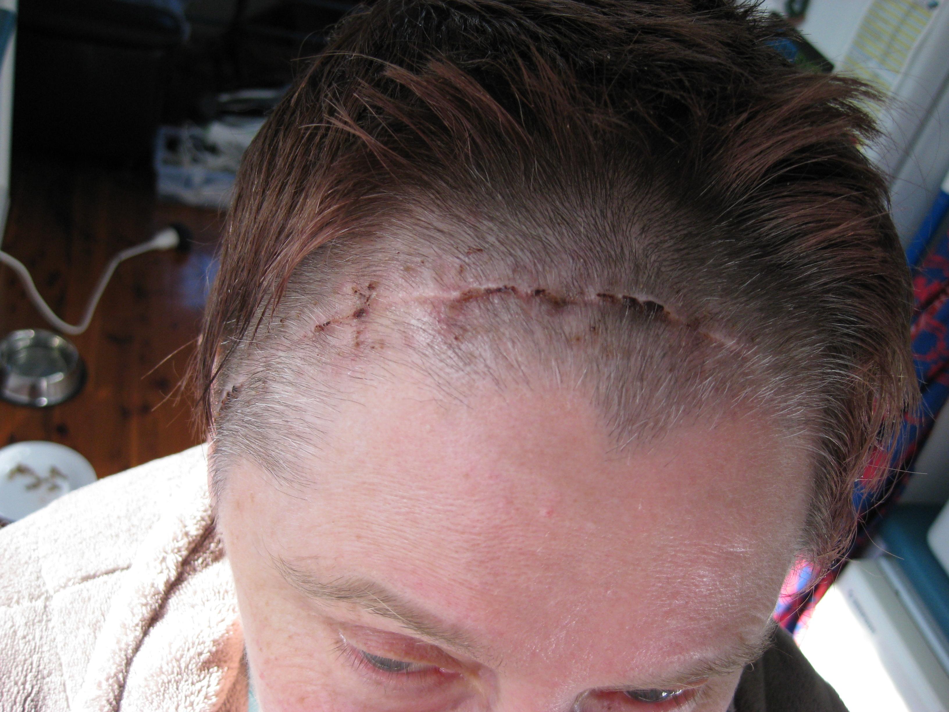 Brain tumor surgery scars